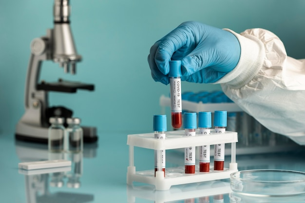 Main avec des gants de protection tenant des échantillons de sang pour le test de covid
