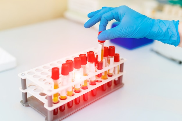 Main de médecin prenant un tube à échantillon de sang dans un rack.
