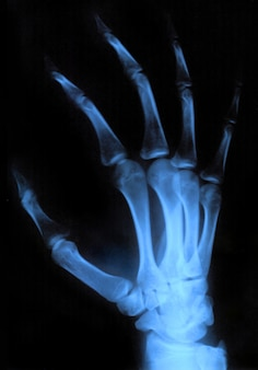 Main de rayons x