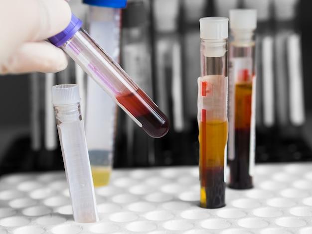 Main de technicien ou de médecin portant des gants médicaux et tenant un tube de sang pour le laboratoire