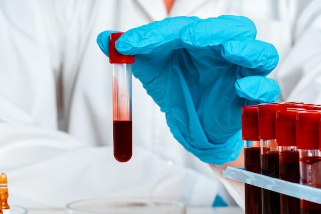 Les mains du médecin dans des gants bleus garder le tube à essai avec du sang