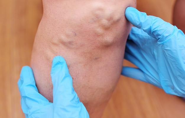Les mains du médecin dans des gants en caoutchouc examinent en gros plan les varices sur les jambes du patient.