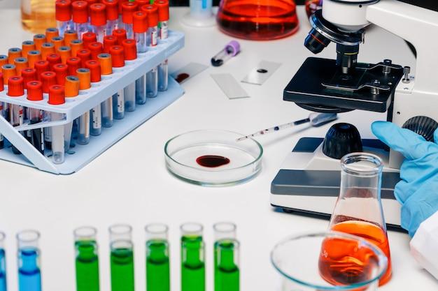 Mains d'un employé de laboratoire faisant un test sanguin