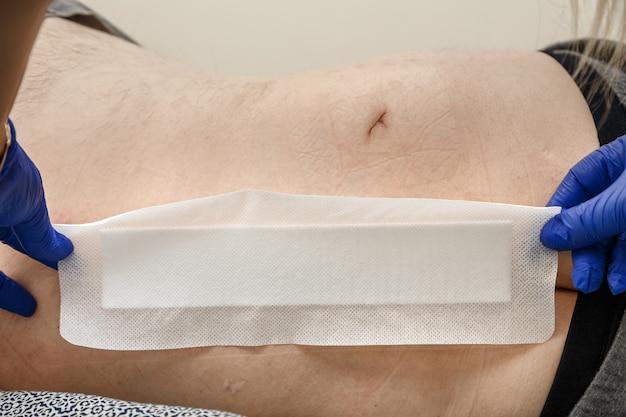 Les mains de l'infirmière appliquent un patch sur la suture postopératoire lors d'un pansement de routine.