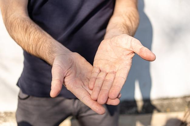 Mains très sèches au toucher, peler à cause de l'alcool de lavage