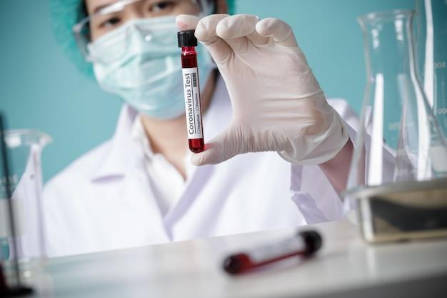Médecin détenant des échantillons de sang de patients pour une épidémie de coronavirus (covid-19) en laboratoire, nouveau coronavirus 2019-ncov