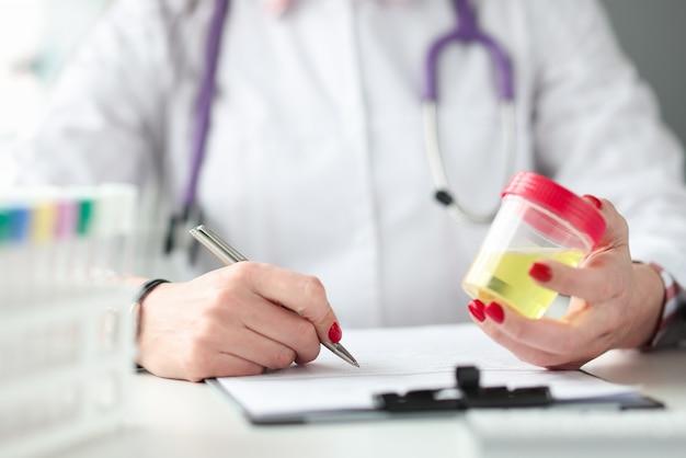 Médecin détient un récipient avec un échantillon d'urine