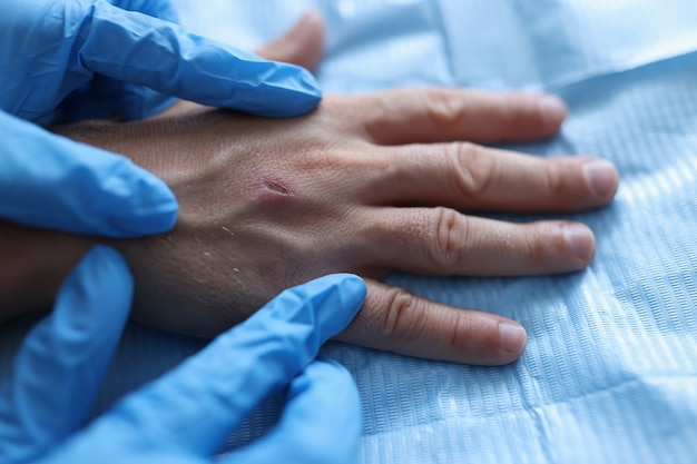 Un médecin ganté procède à un examen physique de la plaie sur l'assistance médicale du bras du patient