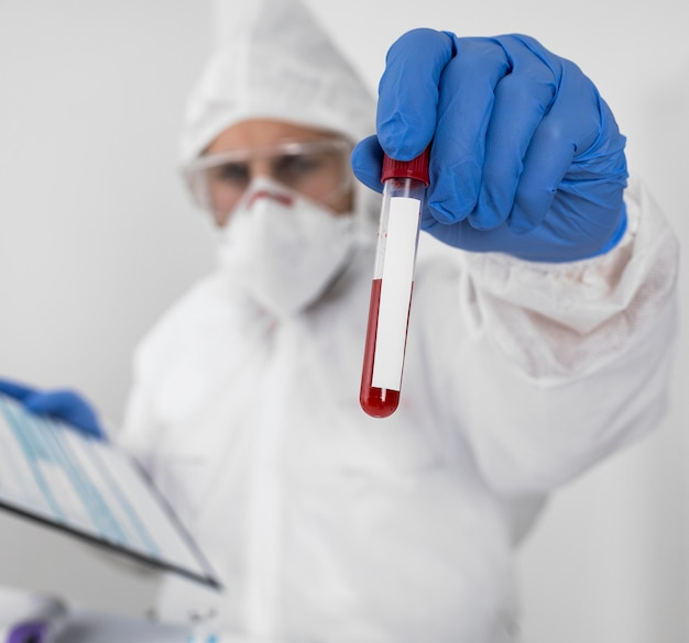Médecin de gros plan tenant un échantillon de covid