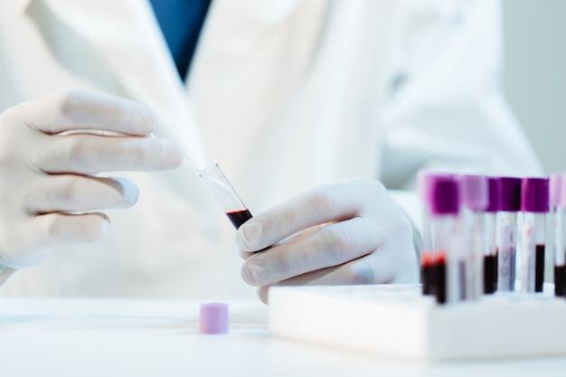 Un médecin virologue examine un échantillon de test sanguin suspecté de virus covid-19.