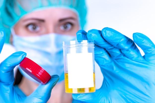 Médecins mains dans des gants bleus tiennent un récipient avec analyse d'urine sur fond blanc