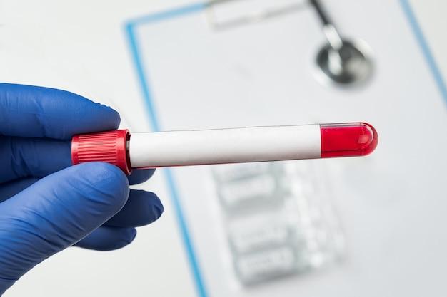 Le microbiologiste détient un tube de sang avec une étiquette vierge pour votre texte.