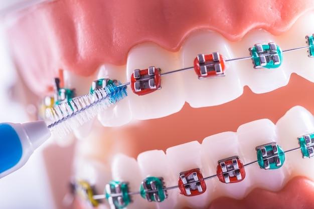 Modèle de dent d'appareils dentaires avec brosse de nettoyage interdentaire.