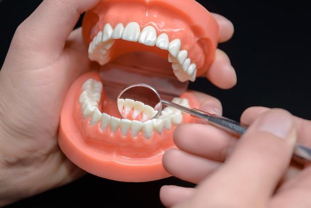 Modèle dentaire, observation avec miroir dentaire.