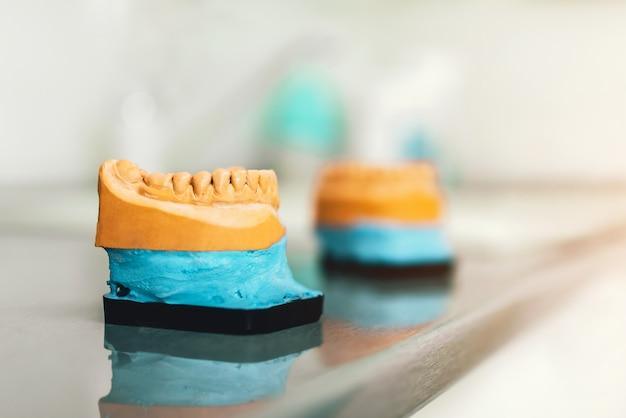 Modèle de gypse dentaire des dents dans le cliinique
