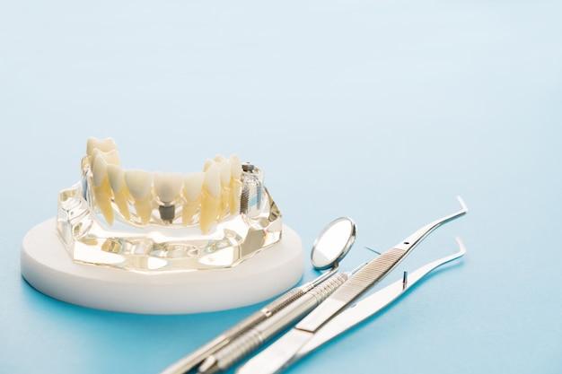 Modèle d'implant et d'orthodontie permettant à l'étudiant d'apprendre un modèle d'enseignement montrant les dents.