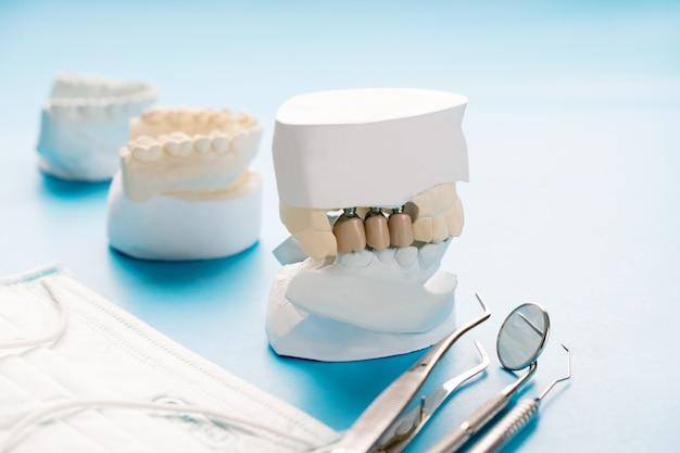 Modèle d'implant et de prosthodontie.