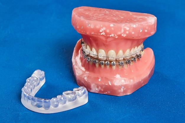 Modèle de mâchoire ou de dents humaines avec des appareils dentaires métalliques