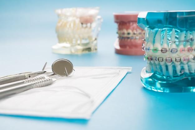 Modèle orthodontique et outil de dentiste - modèle de démonstration de dents de varités orthodontiques