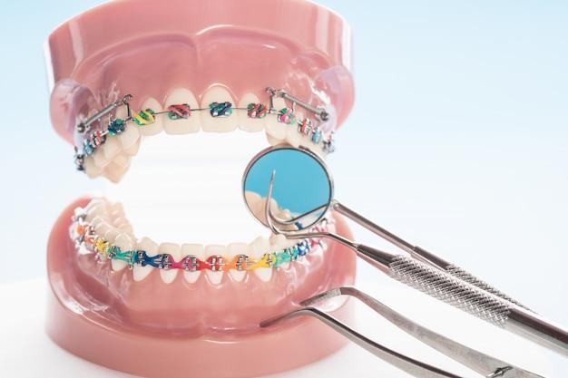 Modèle orthodontique et outil de dentiste - modèle de démonstration de dents des varités orthodontiques