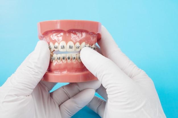 Modèle orthodontique et outil de dentiste - modèle de dents de démonstration de variétés d'orthodontie