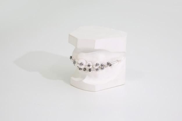 Modèle orthodontique en plâtre avec supports