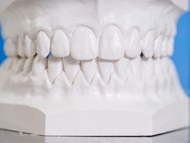 Moule blanc dentaire en plâtre