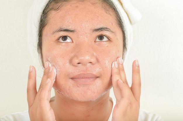 Nettoyage avec du savon pour le visage et l'acné.