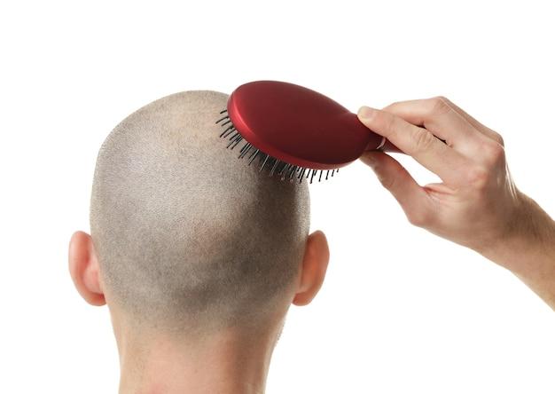 Notion de perte de cheveux. jeune homme, à, peigne cheveux, blanc