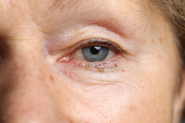 Oeil bleu-gris femelle