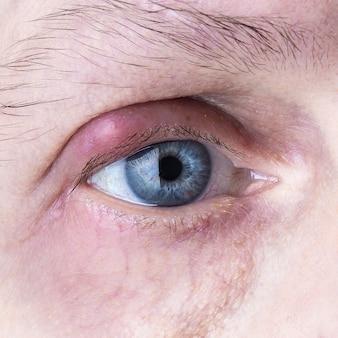 Oeil purulent infecté. infection oculaire de près