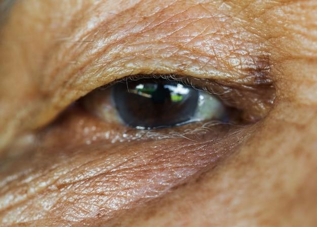 Oeil de la vieille femme