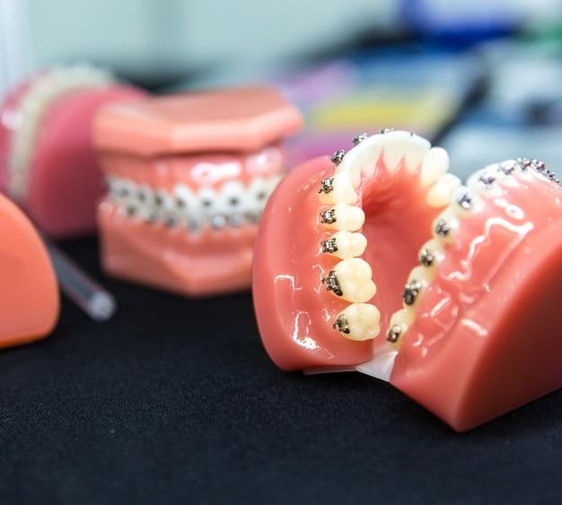 Outils dentaires ou orthodontiques, gros plan de prothèse