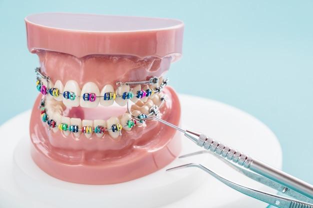 Outils de dentiste et modèle orthodontique sur fond bleu.