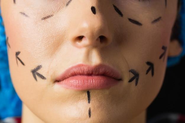 Paisible jeune patient avec des lignes pointillées sur le visage