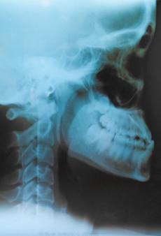 Une partie de la santé de la maladie de radiologie squelettique