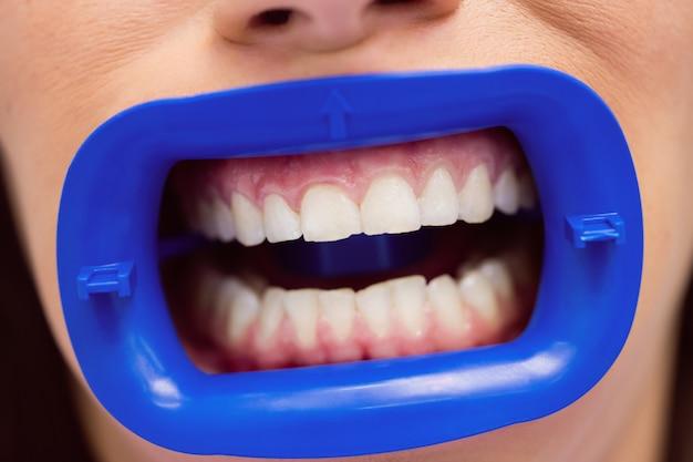 Patient recevant un traitement dentaire