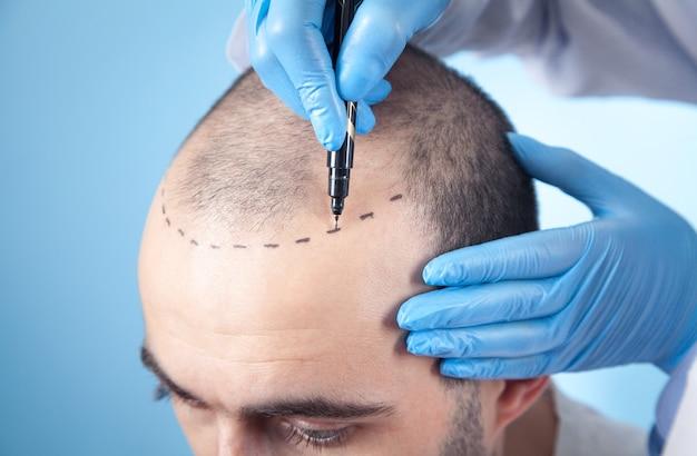 Patient souffrant de perte de cheveux en consultation avec un médecin. docteur utilisant le marqueur de peau