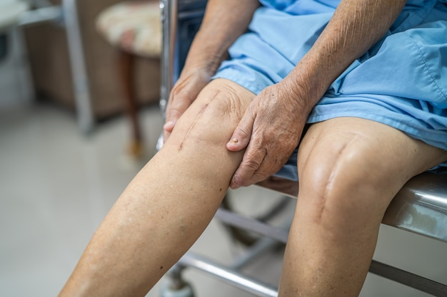 Une patiente asiatique âgée montre ses cicatrices arthroplastie totale du genou chirurgicale