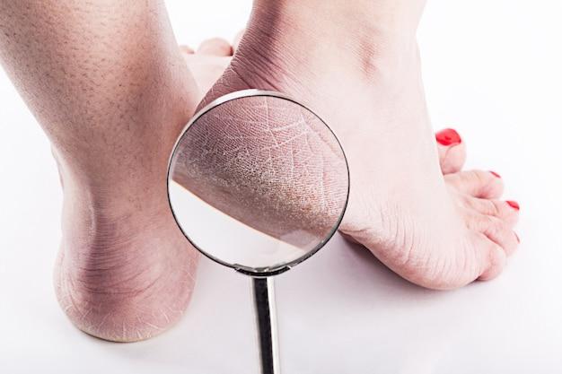 Peau déshydratée sur les talons des pieds féminins