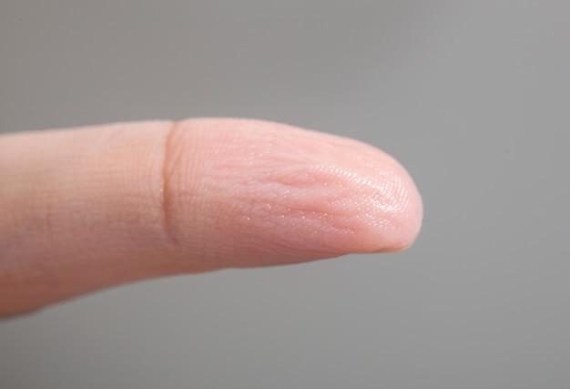 Peau ridée du doigt