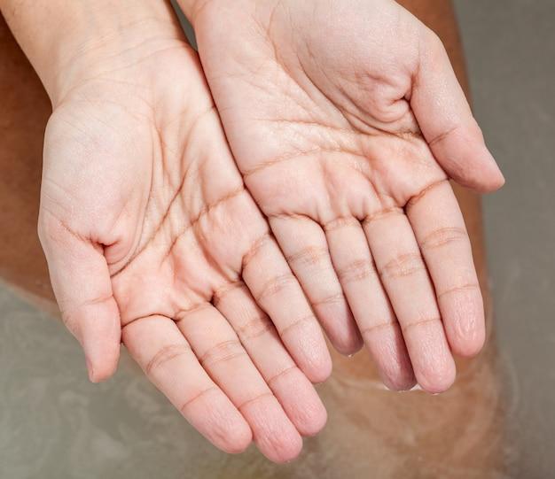 Peau ridée des mains