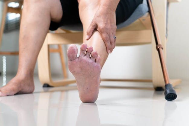 Peau sèche et cornée sur pied de femme senior