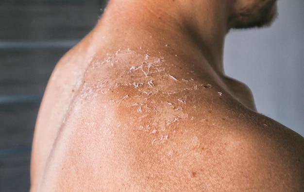 La peau sèche et démangeaisons de l'homme après un bain de soleil