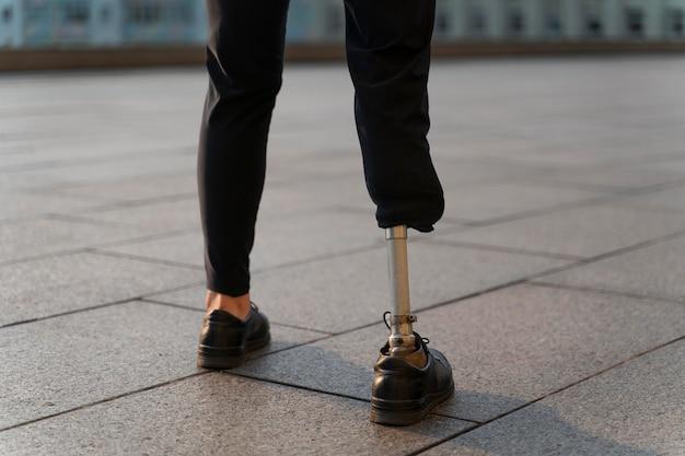 Personne handicapée avec une jambe amputée