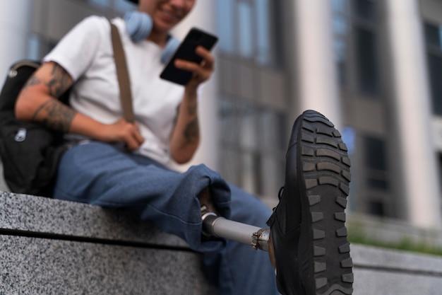 Personne handicapée avec oligodactylie mains