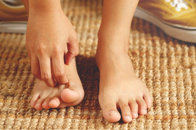 Les personnes atteintes de mycose des pieds au début ressentiront des démangeaisons aux pieds. et les symptômes sont plus prononcés à mesure que le champignon se propage. peau sèche, desquamation, squameuse et ampoules