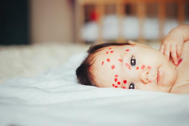 Petit bébé de 5 mois atteint de varicelle gisant à la maison