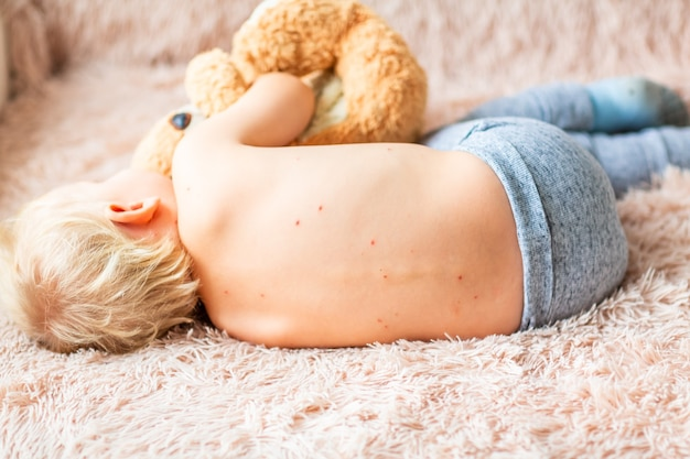 Petit garçon avec le virus de la varicelle ou éruption de bulles de varicelle à la maison