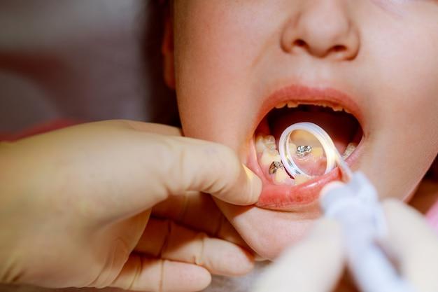 Petite fille assise dans le bureau du dentiste